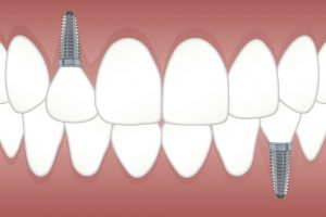 Dental Implant Dentistry St. Clair Shores